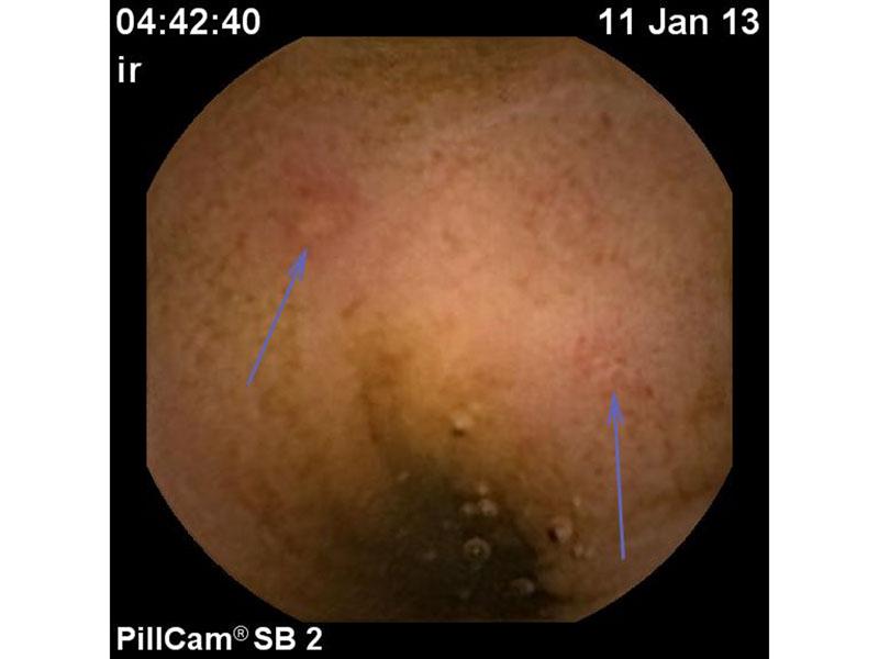 können polypen im darm bluten